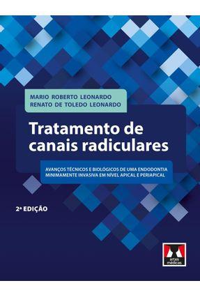Tratamento de Canais Radiculares - 2ª Ed. 2017 - Leonardo,Mario Roberto Toledo Leonardo  ,Renato De pdf epub