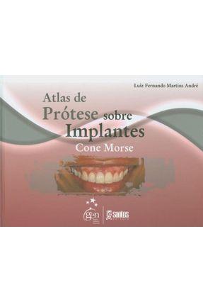 Atlas de Prótese Sobre Implantes - Fernando Martins André,Luiz   Hoshan.org