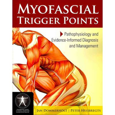 Myofascial Trigger Points - Pathophysiology And Evidence-informed Diagnosis And Management