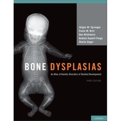 Bone Dysplasias - Third Edition