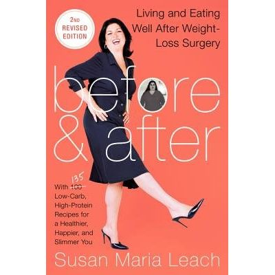 Before & After, Second Revised Edition - Living And Eating Well After Weight-Loss Surgery