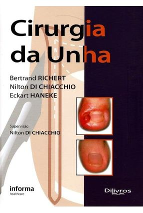Cirurgia da Unha - Richert,Bertrand Di Chiacchio,Nilton Haneke,Eckart | Hoshan.org