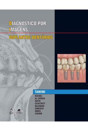Especialidades Em Imagens - Implantes Dentarios - KOENIG Tamimi | Hoshan.org