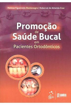 Promoção de Saúde Bucal Em Pacientes Ortodônticos - Figueiredo Montenegro,Melissa De Almeida Cruz,Roberval | Hoshan.org