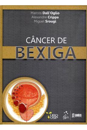 Edição antiga - Câncer de Bexiga - Dall'oglio,Marcos Crippa,Alexandre Srougi,Miguel | Hoshan.org