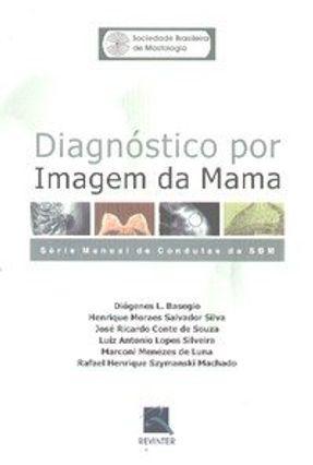 Diagnóstico Por Imagem da Mama - Série Manual de Condutas da Sbm - Silva,Henrique Moraes Salvador Basegio,Diógenes L. Outros pdf epub