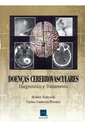 Doenças Cerebrovasculares - Diagnóstico e Tratamento - Tedeschi,Helder | Tagrny.org
