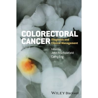 Colorectal Cancer - Diagnosis and Clinical Management
