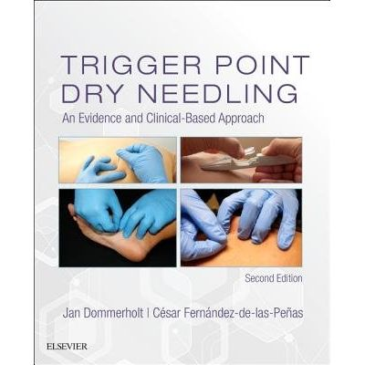 Trigger Point Dry Needling - An Evidence And Clinical-Based Approach