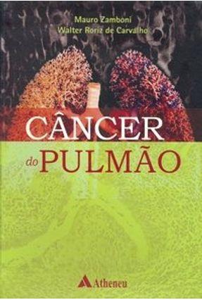 Câncer do Pulmão - Carvalho,Walter Roriz de Zamboni,Mauro pdf epub
